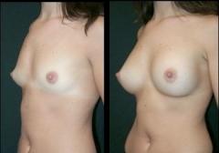 2. мастопластика по увеличению