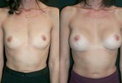 4. мастопластика по увеличению