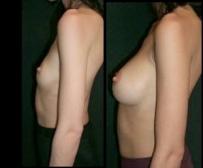 6. мастопластика по увеличению