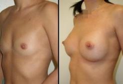 8. мастопластика по увеличению